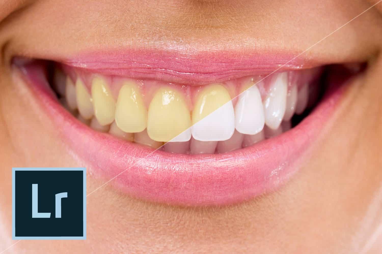 Como clarear Dentes no Lightroom – Tutorial Passo a Passo